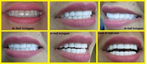اصفرار-الاسنان