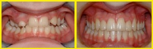 Case-1-Before-and-After