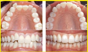 orthodontics-invisalign-before-after